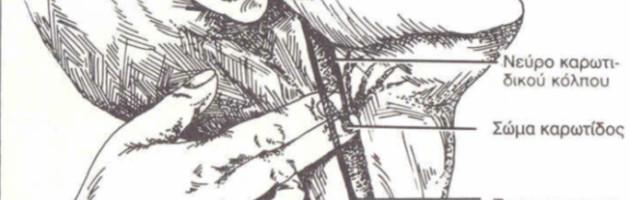carotid-sinus-relfex-featured-el